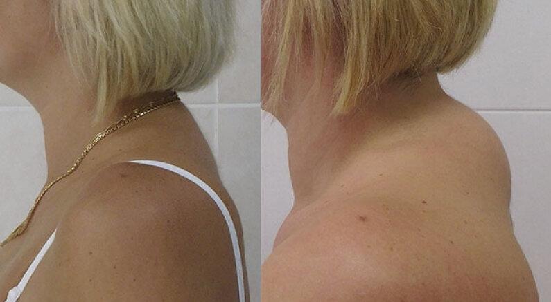Что произойдёт с телом, если делать разминку для шеи каждый день? 2 простых и полезных упражнения за 1 минуту