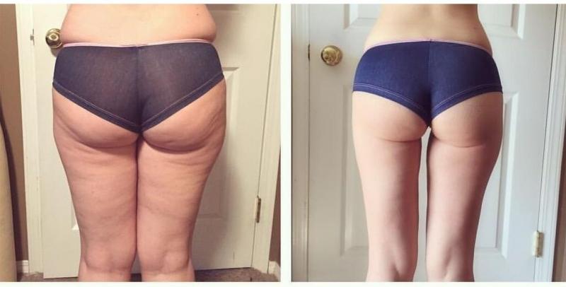 Упражнения, которые быстро уберут жир на ногах с внутренней стороны и внешней стороны бедер, между ног, верхней части ног.